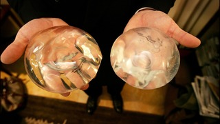 Breast implants linked to rare cancer, 9 deaths to date FDA says