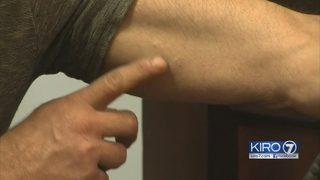 Implant in bicep presents alternative opioid treatment