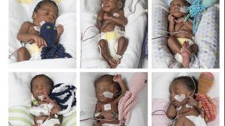 Couple spent 17 years trying to conceive ... and then had sextuplets