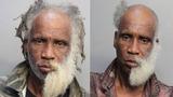 Florida Man With Half-Beard Arrested Again