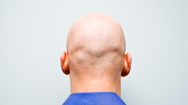 13 Reasons Bald Men Are Sexy ... - allwomenstalk.com