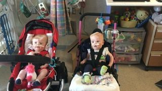 Conjoined twins thriving after surgery to separate them