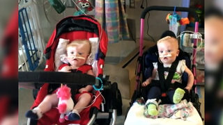 Formerly conjoined twins head home to North Carolina after separation surgery