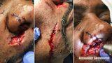 Dog bite wounds. (Photo courtesy Alexander Shunnarah & Associates)