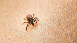Mom warns of tick bite paralysis after 2-year-old couldn