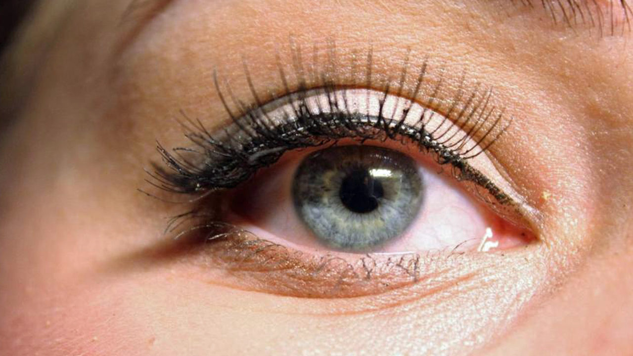 Eye Surgeon Issues Warning About Mites Found In Eyelash Extensions