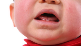 FDA warns some teething medicines are unsafe for babies