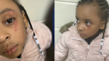 Hailey Turner's mother says the 5-year-old returned home from her kindergarten class with a bruise on her eye. The child said her teacher hit her. (Photo: MyFoxMemphis.com)