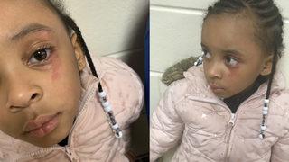 Teacher denies hitting 5-year-old girl in the eye with ruler: