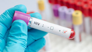 Man accused of knowingly exposing woman to HIV