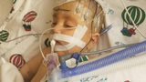 Wisconsin Baby Who Needed Partial Liver Transplant Died