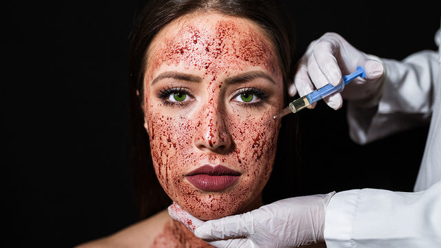 2 clients of spa that offered 'vampire facials' diagnosed with HIV
