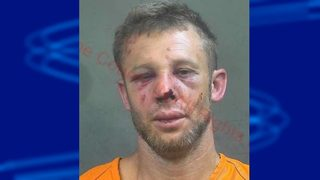 Grandparents fight off man who tried to abduct 6-year-old girl, police say